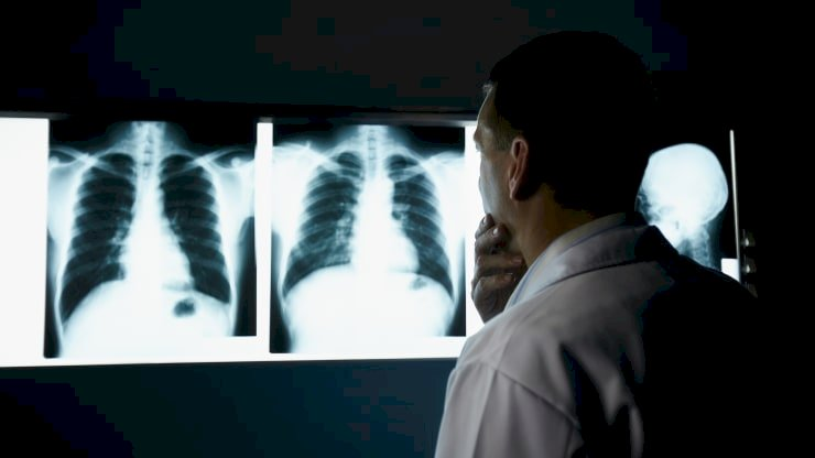 GE's health unit wins first FDA clearance for A.I.-powered X-ray system